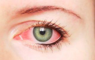 penyebab-mata-merah-doktersehat