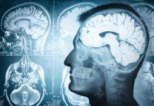 doktersehat-otak-xray-mri-infeksi-parkinson-1024