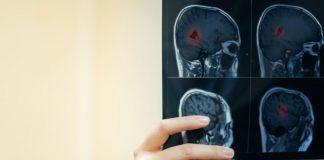 multiple-sclerosis-doktersehat