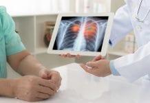 emfisema-doktersehat