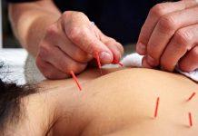 Doktersehat-manfaat akupuntur