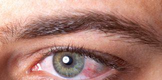 mata-merah-doktersehat
