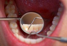 pembersihan-karang-gigi-doktersehat