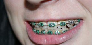 doktersehat-pasang-behel-kawat-gigi