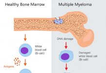 multiple-myeloma-doktersehat