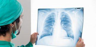 pneumothorax-doktersehat
