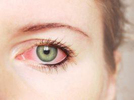 doktersehat-mata-merah-kurang-vitamin-C-bakteri-glaukoma-Eksoftalmus-1024