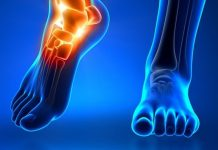 Doktersehat-pengobatan-osteoarthritis