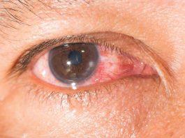 penyakit-mata-keratitis-doktersehat