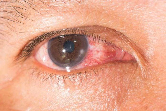 Keratitis: Penyebab, Gejala, Diagnosis, Pengobatan, Pencegahan