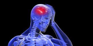doktersehat-stroke
