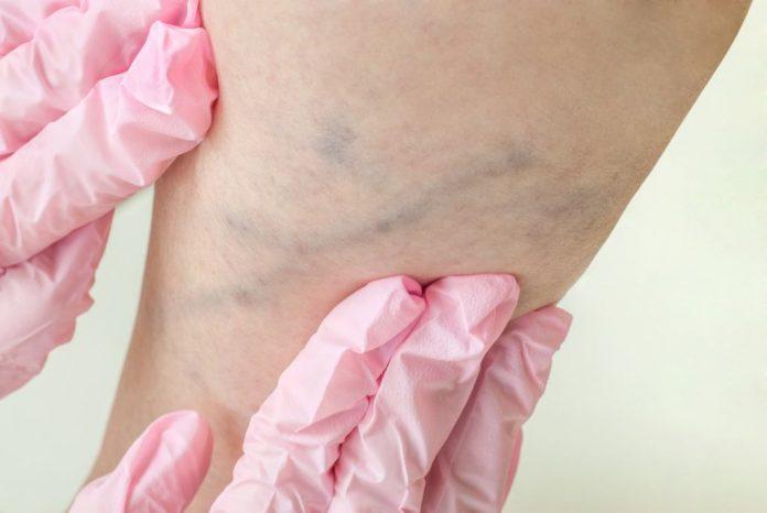 trimbosis-vena-dalam-doktersehat