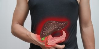 DokterSehat - Penyakit Hepatitis adalah Peradangan Hati