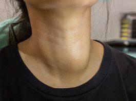 Doktersehat-benjolan-di-leher