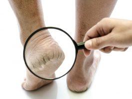 telapak-kaki-pecah-doktersehat_232604116