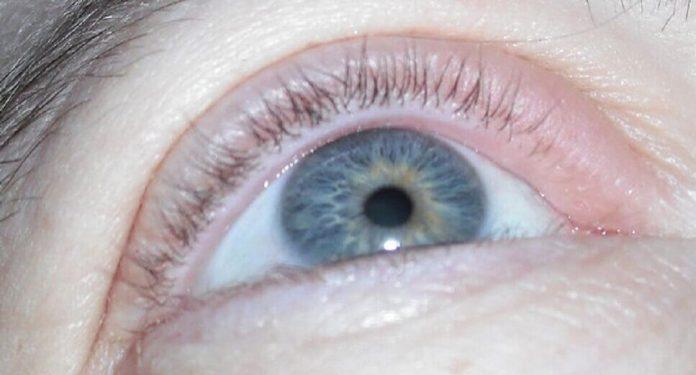 Mata Anda Bengkak? Inilah Pengobatan yang Bisa Dilakukan