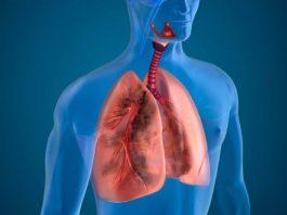Doktersehat-perawatan-radang-paru-paru