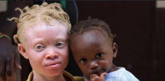 Doktersehat-penyakit-albino