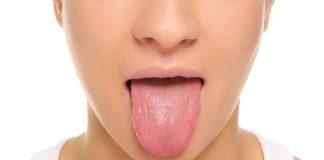 Doktersehat-lidah-mati-rasa