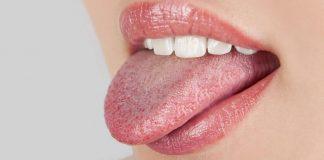 Doktersehat-ciri-ciri-kanker-lidah