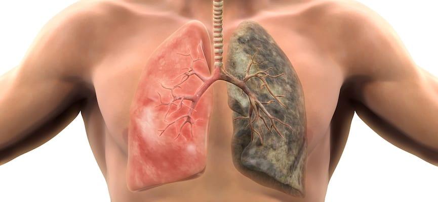 doktersehat-tuberkulosis-paru-paru-penyakit