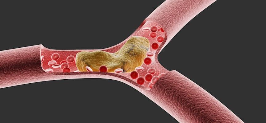 doktersehat-kolesterol
