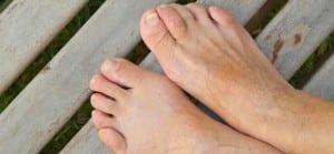 doktersehat-kulit-tangan-halus-kesehatan-skin-Eksim-Nummular-Dermatitis-Erisipeloid-Eritema-Nodosum-ichtyosis-lamellar-panu