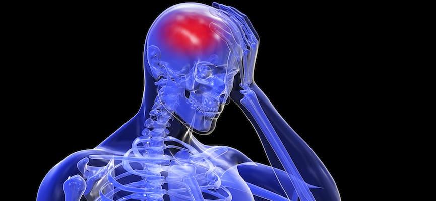 doktersehat-stroke-otak-pembuluh-darah