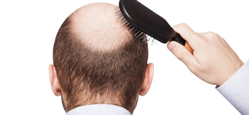 doktersehat-rambut-rontok-botak-kebotakan-alopecia