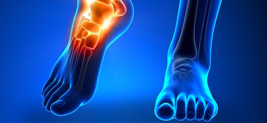 doktersehat-tulang-kaki-sendi-lari-jalan