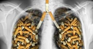 doktersehat-paru-rokok-kanker
