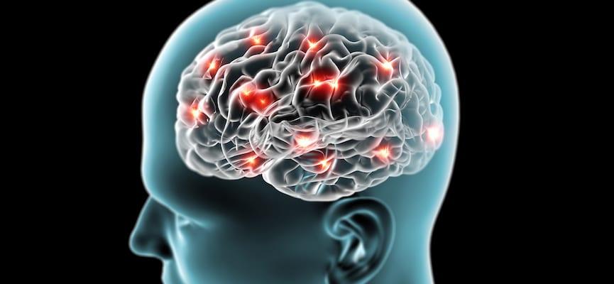 Deteksi Dini Penyakit Multiple Sclerosis (MS)