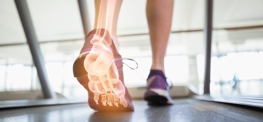 Lari di Atas Treadmill Tidak Selalu Buruk, Kok