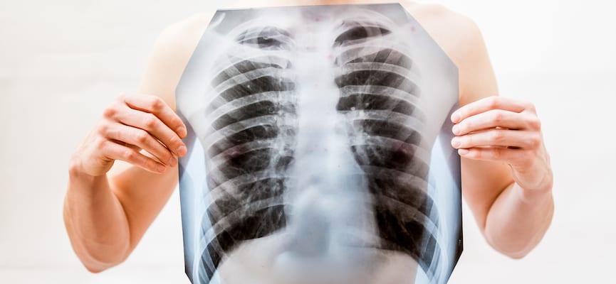 doktersehat-cedera-paru-efusi-pleura