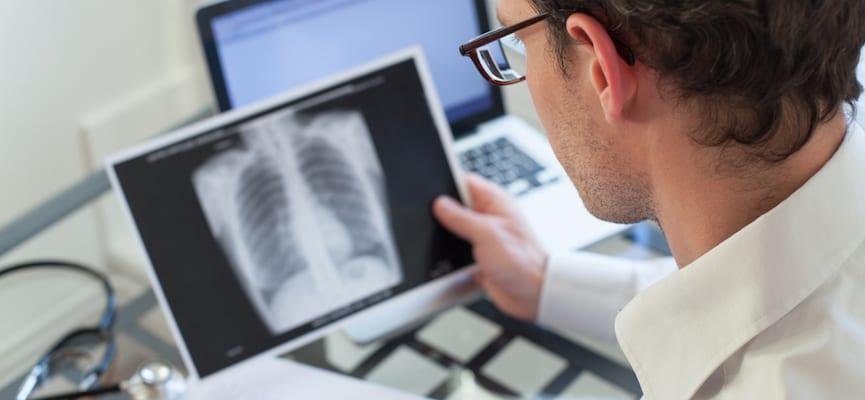 doktersehat-ispa-infeksi-saluran-pernafasan-akut-paru