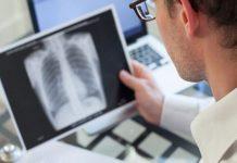 Doktersehat-infeksi-saluran-pernapasan-akut