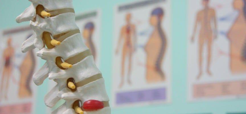 Rutin Minum Susu Berarti Terbebas Dari Osteoporosis? Belum Tentu