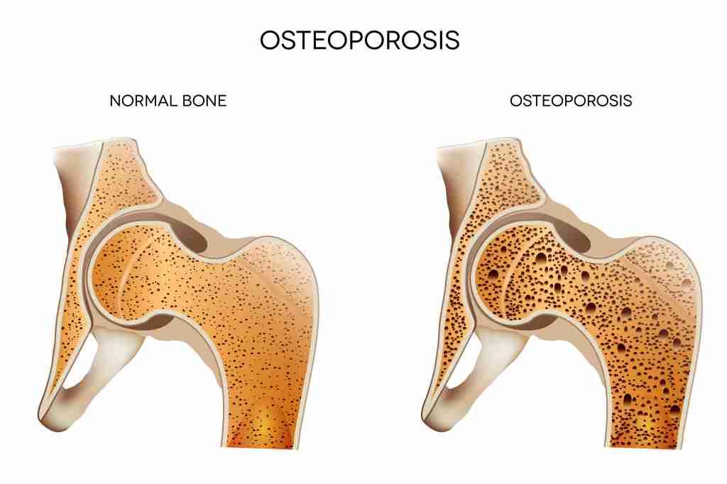 Osteoporosis: Gejala, Penyebab, Diagnosis, dan Pengobatan