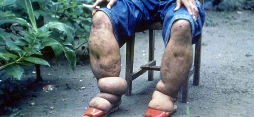 doktersehat-bengkak-kaki-kelainan
