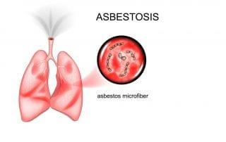 asbestosis-doktersehat