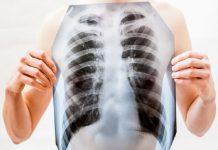 Doktersehat-kaitan-soda-susu-dan-paru-paru