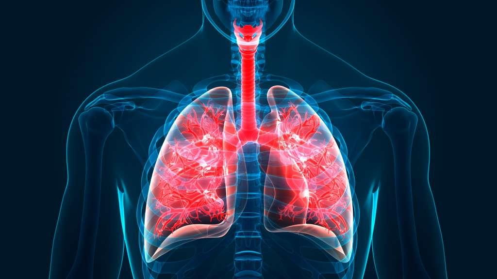 Emboli Paru: Gejala, Penyebab, Pengobatan, Pencegahan, dll