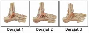 klasifikasi cedera ankle