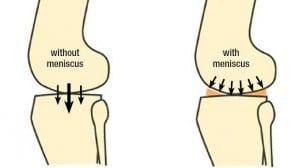 meniscus 3