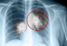 flek-paru-paru-doktersehat