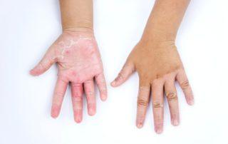 dermatitis-kontak-doktersehat
