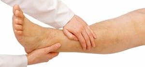 doktersehat-sakit-kaki-keseleo-mata-kaki