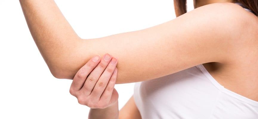 doktersehat-siku-hitam-lengan-tangan-Eritema-Multiformis-luka-bakar