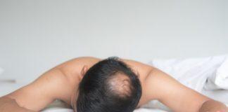 alopecia-doktersehat