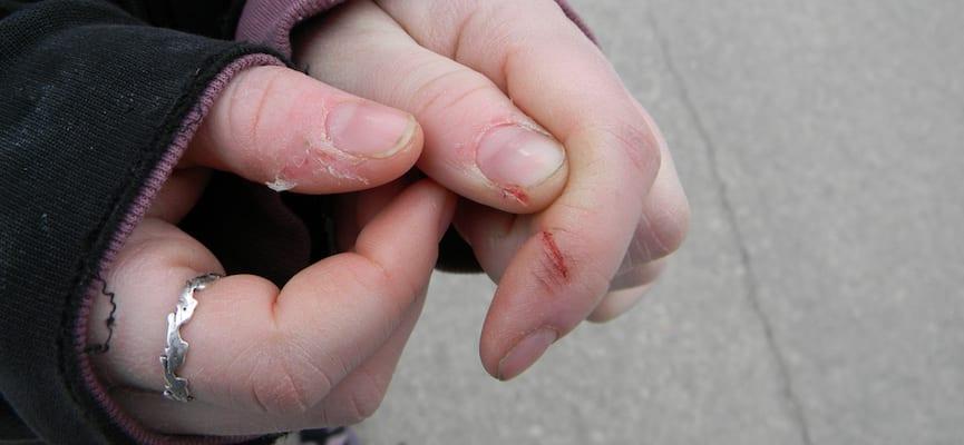 Penyakit Hemofilia adalah Penyakit Genetis